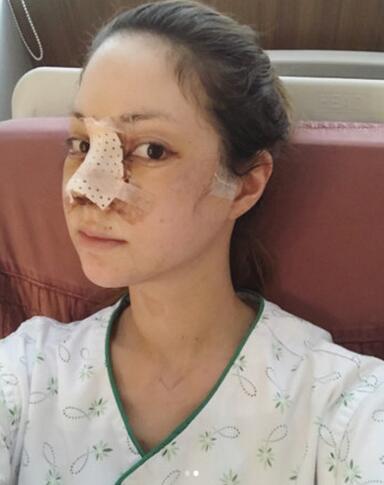 蒂亚做了垫鼻手术