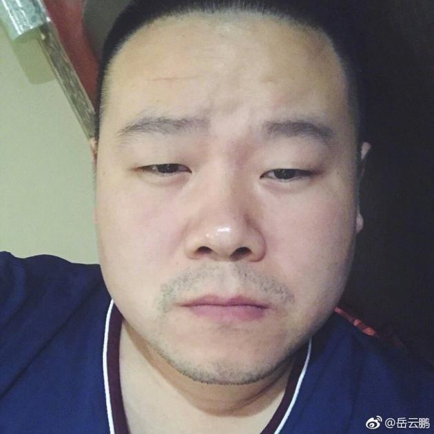 岳云鹏高原反应强烈似昏睡 网友:所以眼睛都小了?