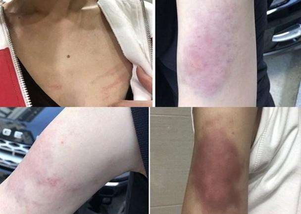 女工作人员朴某公开照片,指自己在过程中被打伤