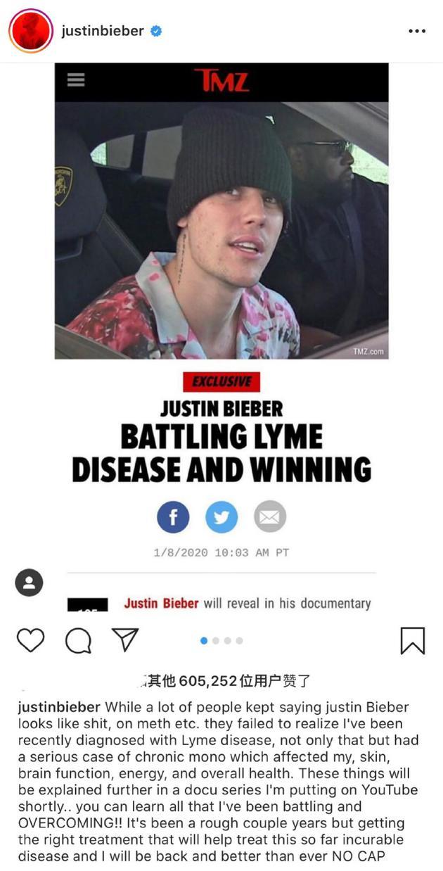 比伯自曝患上莱姆病
