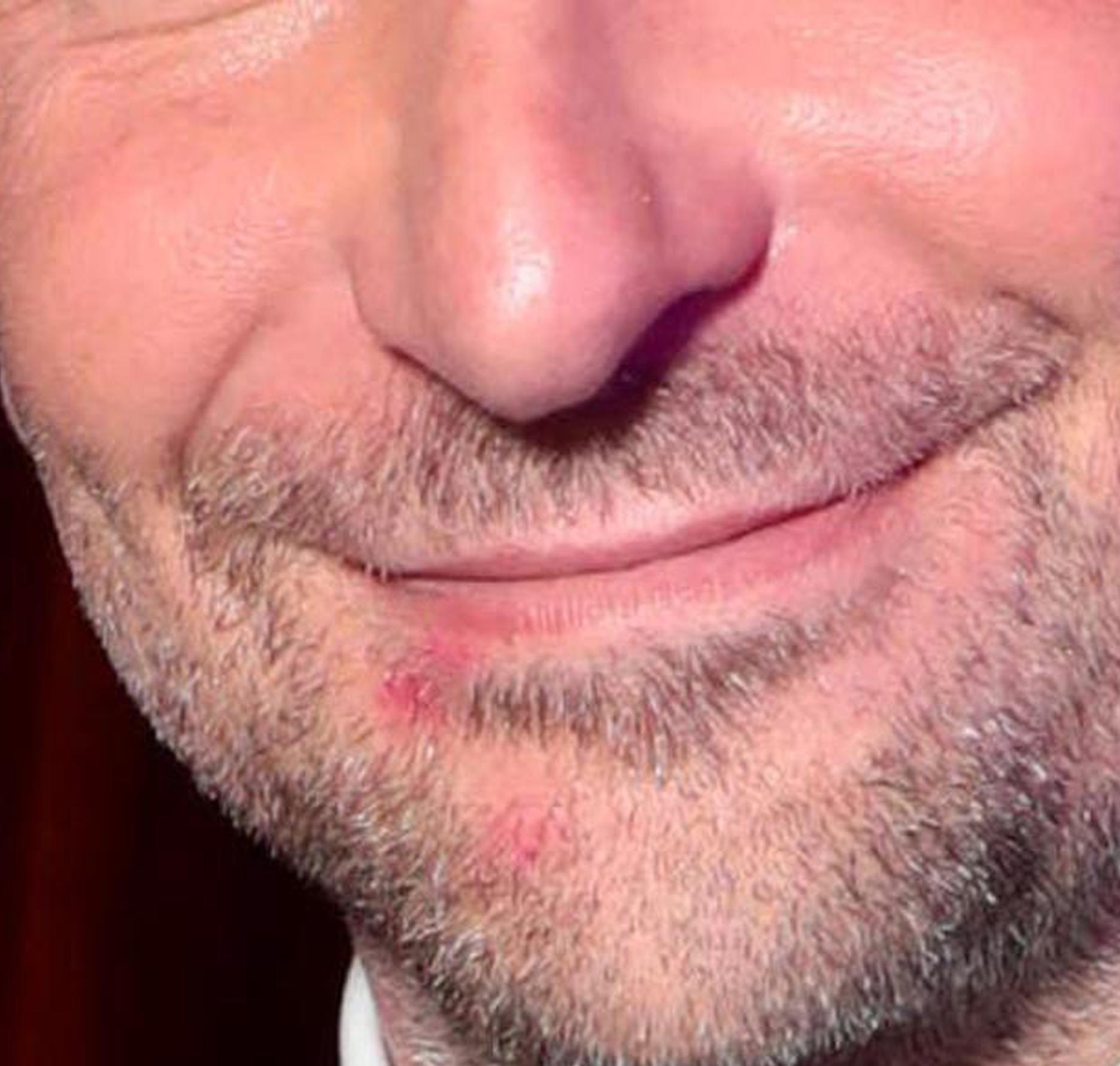 布莱德利·库珀嘴角的口红印