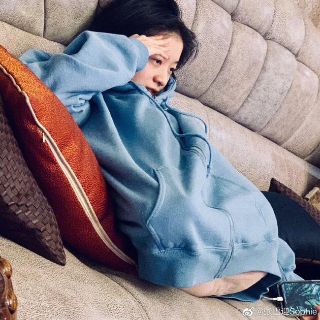 张雪迎躺在沙发上