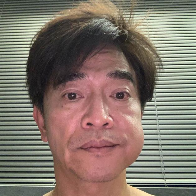 吴宗宪拔牙脸肿大包 放话:很快帅回来!