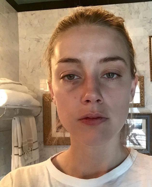 Amber Heard被曝伪造伤痕
