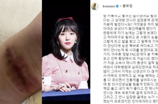 AOA权珉娥自曝又割腕 指责FNC申智珉做错事不道歉