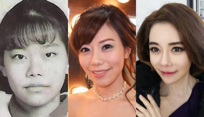 她从小被嘲笑长得丑,花20年整形60次变韩国女星!