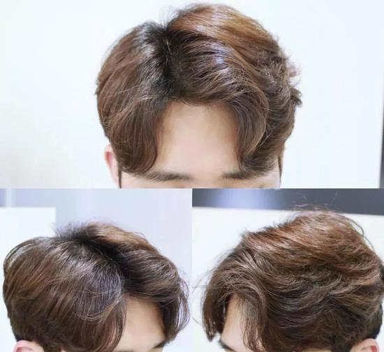三七分的短发,露出眉毛,一侧发量较少,一侧发量厚而多图片