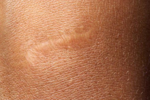 疤痕滚粗!超有效祛疤淡印法+神奇祛疤膏推荐