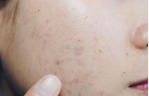 安信5注册登录对痘痘君 不同分身要有不同的针对方案