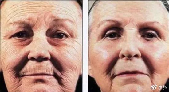 同为71岁的双胞胎老人。