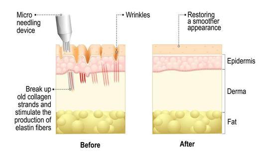 胶原蛋白VS玻尿酸拿什么拯救这张不想衰老的脸
