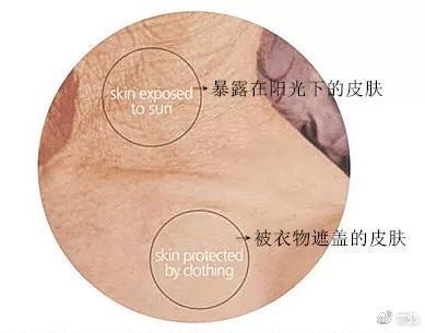如上图示:80岁老人,脖子(阳光照射处)和锁骨下方(不见光处)的肌肤状态