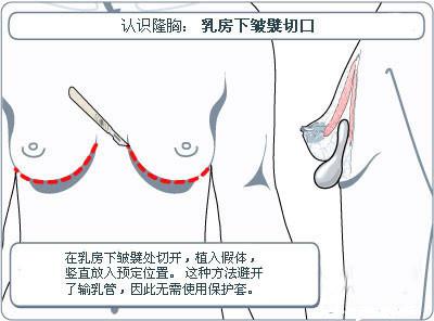 假体隆胸手术切口各有什么优缺点?