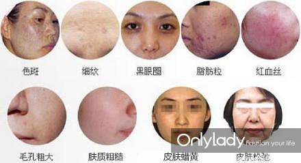 镭射净肤有什么作用?