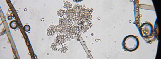 在显微镜下,贵腐菌的形状与一串葡萄惊人地相似?UC Davis
