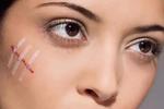 断货王   疤痕滚粗!超有效祛疤淡印法+神奇祛疤膏推荐