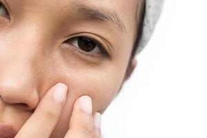眼部关爱计划 你的眼睛足够精致吗?