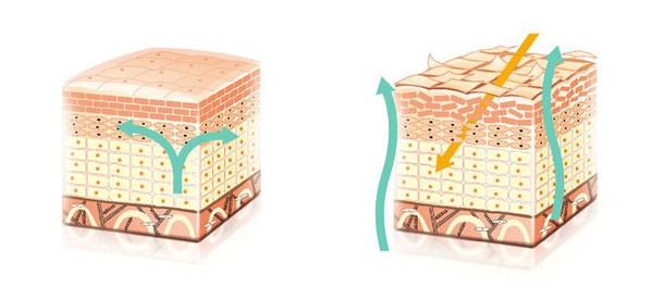 左:健康的皮肤屏障 右:受损的皮肤屏障