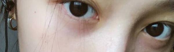 关晓彤的黑眼圈