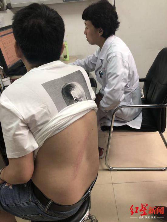 ↑ 陈先生被烫伤的背部