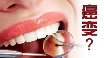 长期复发的口腔溃疡会演变成癌性溃疡吗?