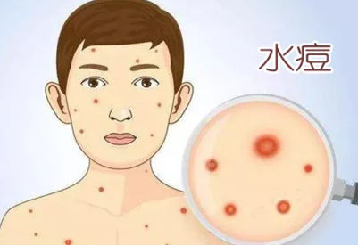 福建发布最新传染病疫情报告 这些病要当心