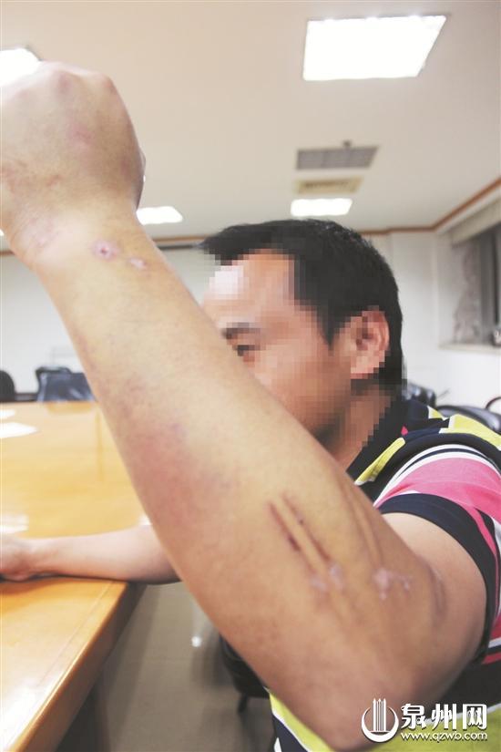 """因不愿意屈服""""沙霸"""",装修工人陈先生被打伤。"""