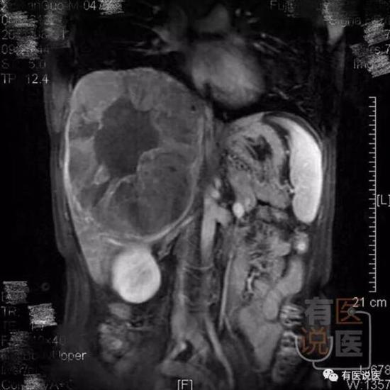 核磁共振显示,他的右肝有个巨大肿瘤