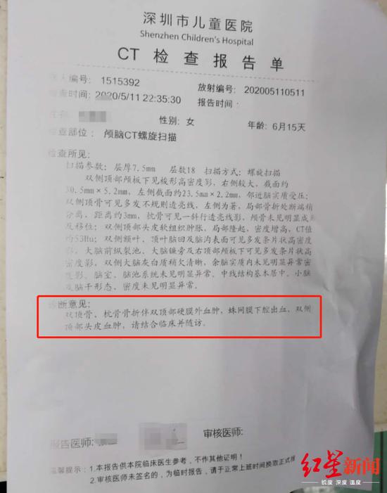 女婴CT检查报告单