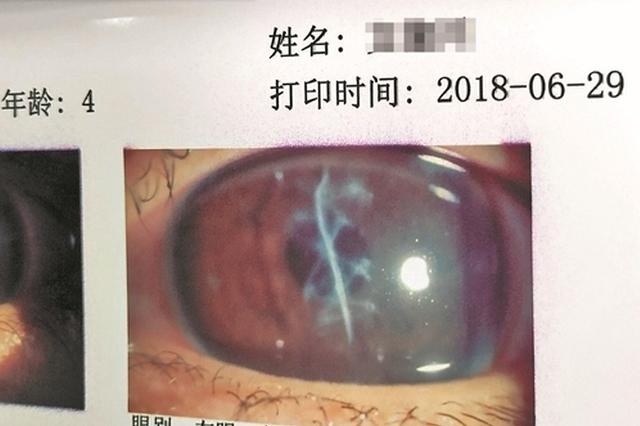 泉州:剪刀戳伤4岁孩子眼睛 角膜移植重见光明