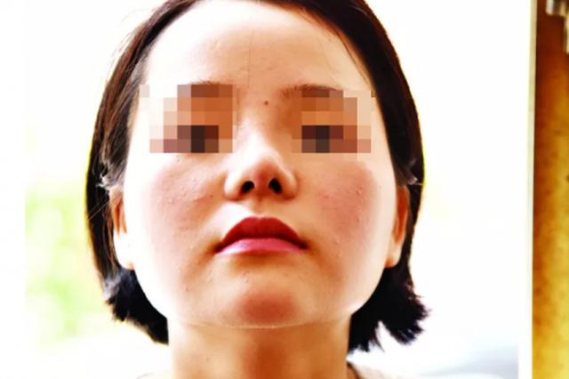 女子怒诉泉州东大医疗美容:花4.4万整容鼻子歪了