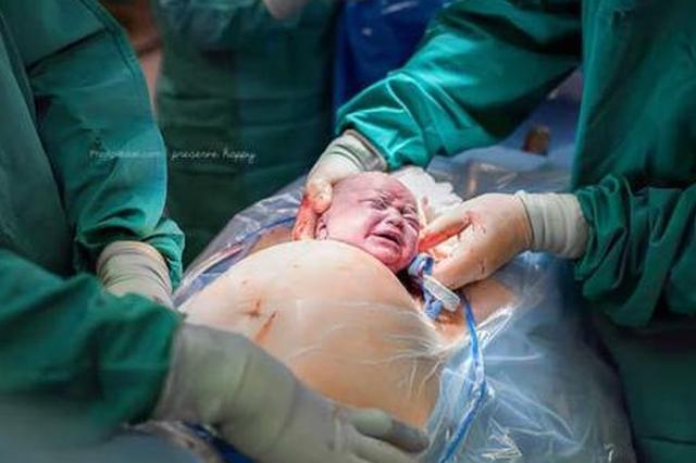 """福州一产妇生下""""哪吒宝宝"""" 特别剖宫产保护早产儿"""