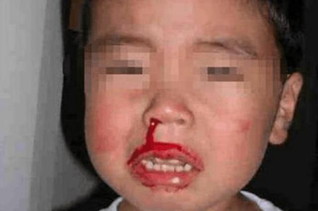 6岁男童反复鼻出血 原来竟是鼻子里长了牙
