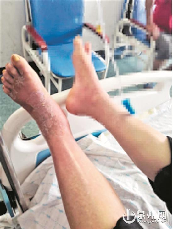 被蚂蚁叮咬导致左脚溃烂