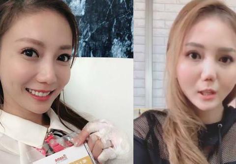 刘乔安首度公开毁容照,因吸毒导致鼻腔塌陷,自称不敢见人