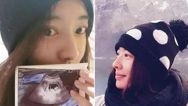 罗志祥绯闻女友宣布怀孕,曾因腰伤险些瘫痪,老公不离不弃!