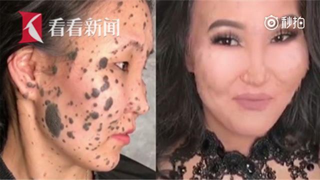 """化妆师展""""换脸""""神技 满脸黑斑女子变无暇美肌"""