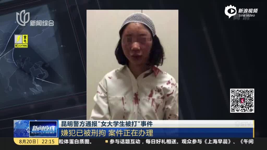 """昆明警方转达""""女大学生被打""""事务:嫌犯已被刑拘  案件正在管理"""