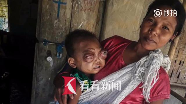 双眼凸出肿如柠檬 印度2岁男童患怪病无法闭眼