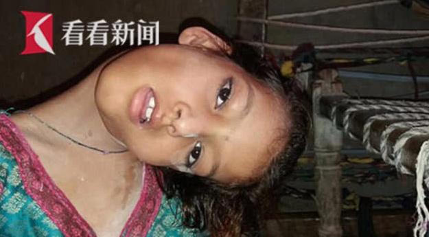 巴基斯坦9岁女孩头部无法竖立只能180度平摊