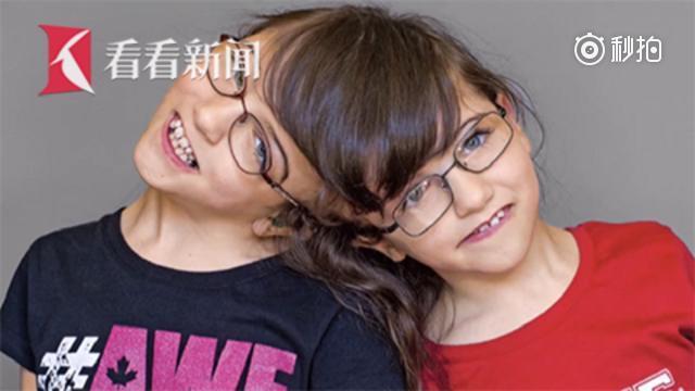 连脑双胞胎奇迹共度10岁生日 出生时被告知活不过一天