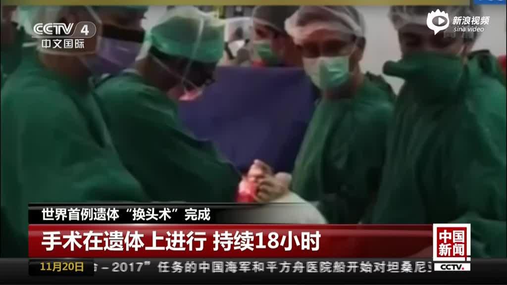 """天下首例遗体""""换头术""""完成:手术在遗体上举行  连续18小时"""