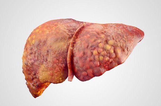 什么是中度脂肪肝_脂肪含量在33%左右,属于轻度脂肪肝; 脂肪含量达到66%,属于中度脂肪肝