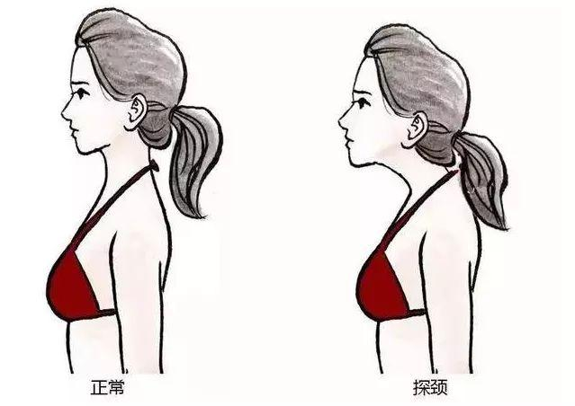 頸部老是往前面探,同時肩膀下沉,那斜方肌自然看上去就非常明顯。
