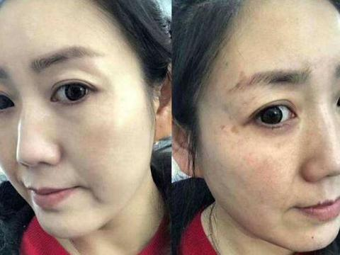 美容专家:黄褐斑反复不要慌!每天坚持这2点,超过10片氨甲环酸