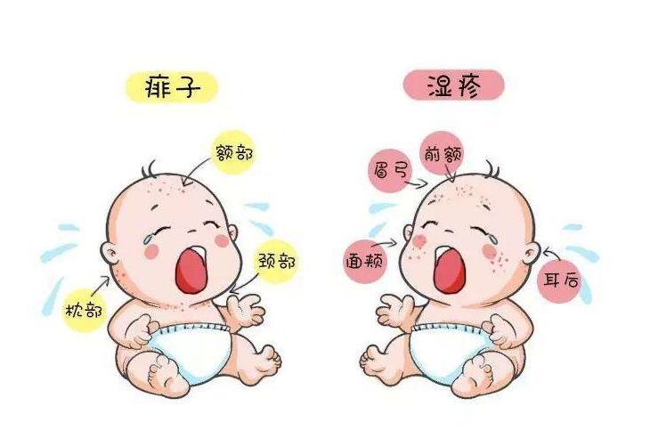 疹样乳癌_婴儿湿疹与热疹是不一样!