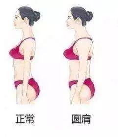 女生怎樣避免比較發達的斜方肌?