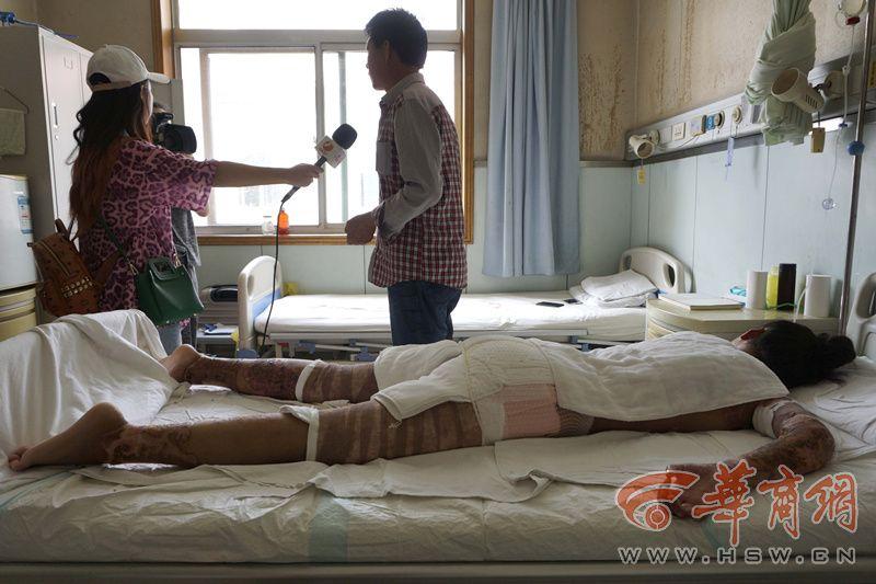 马莹莹的18岁生日是在病床上度过的,全身烧伤面积超过50%。