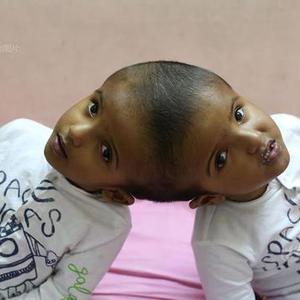 孟加拉国连体双胞胎女童接受治疗
