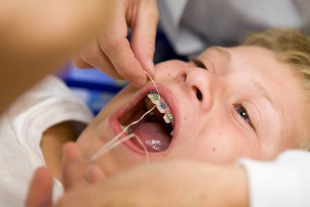 孩子牙齿畸形矫正要多少钱
